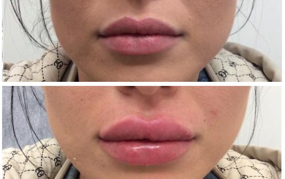 قبل و بعد از تزریق ژل لب