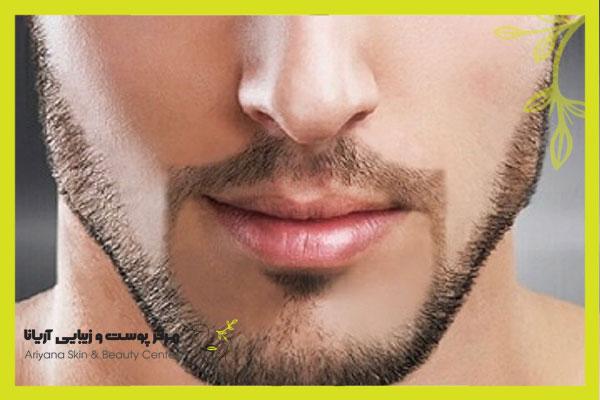 لیزر خط ریش مردان